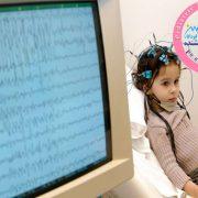 علائم تشنجی در کودک